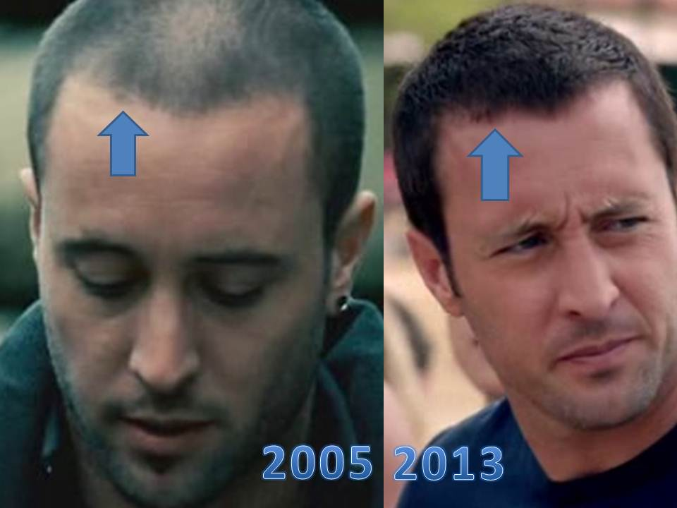 Alex o loughlin it is a piece about hair but is for Tattoo hair line