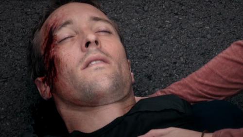 Steve injured