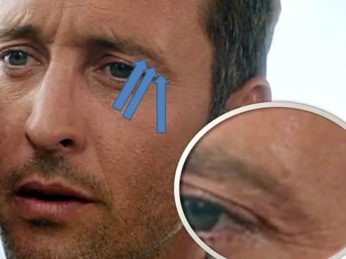 left brow 0