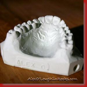Model of Alex O'Loughlin's Upper Dental Arch.